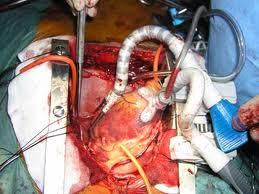 primo trapianto di cuore da cadavere in Europa